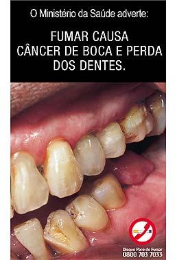 tabaco_dentes.jpg
